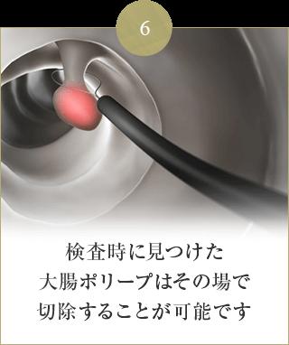 検査時に見つけた 大腸ポリープはその場で 切除することが可能です